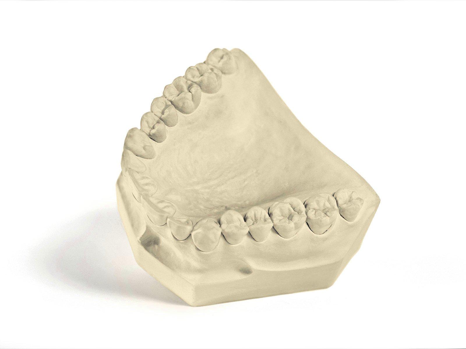 Garreco 1031025 Dental Tecstone FL, Type III Gypsum Base Stone, 25 lb Carton, Buff