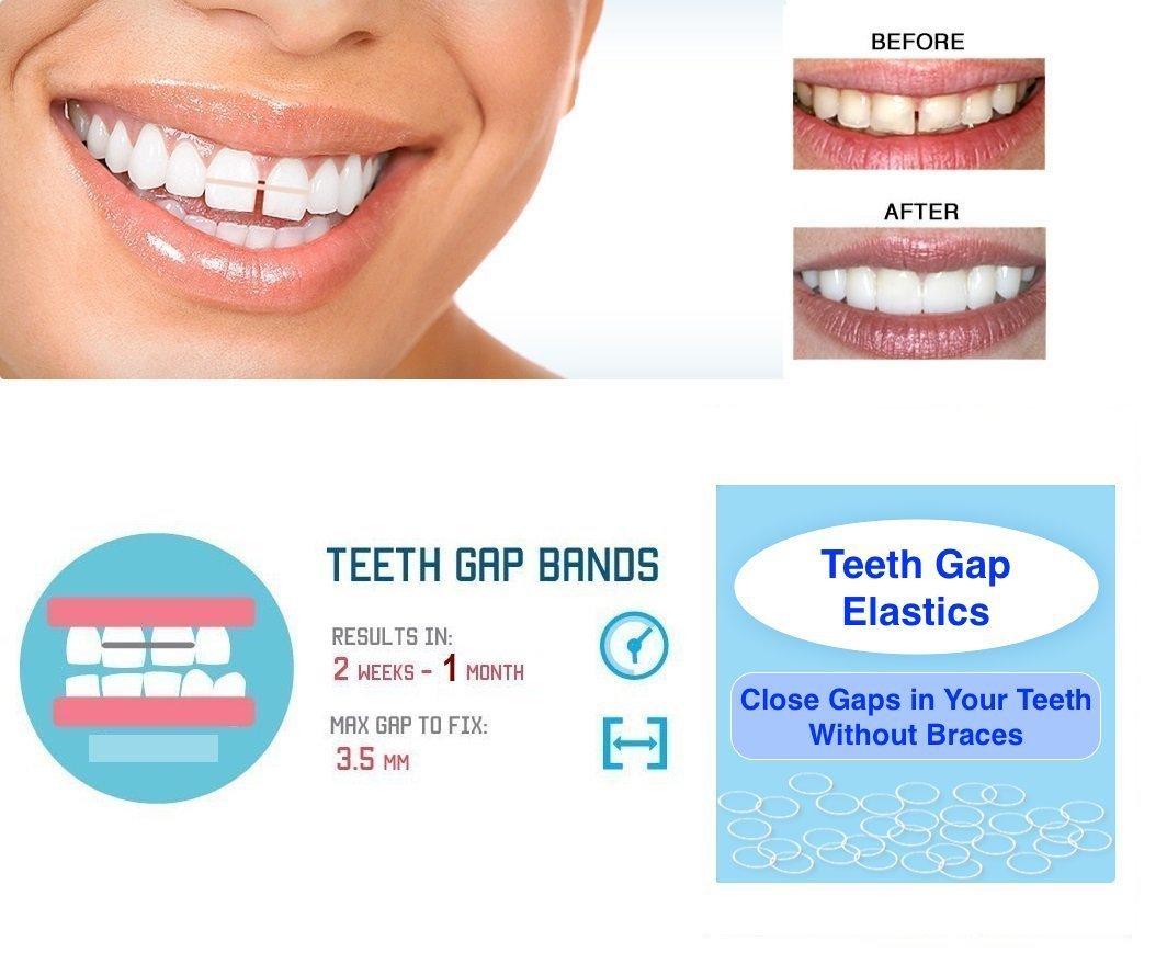 Amazon orthodontic gap teeth bands 316 heavyfloss 1 pack of ivorie dental teeth gap orthodontic bands clear elastic 100pk 38 solutioingenieria Image collections
