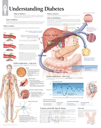 Understanding Diabetes Educational Chart Poster 22 x 28in