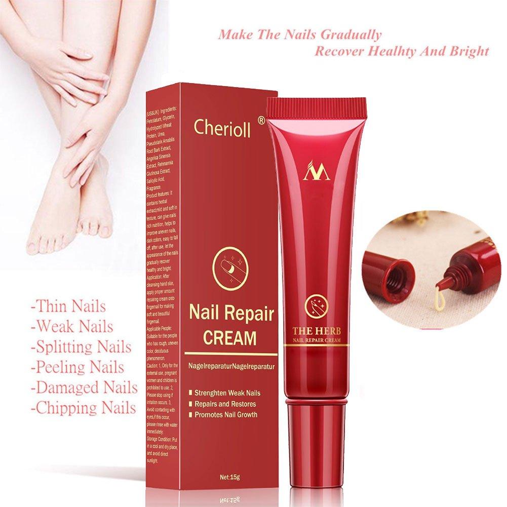 Nagelpilz,Nagel Behandlung,Nagelpilz Cream,Nagellack Gegen Nagelpilz ...