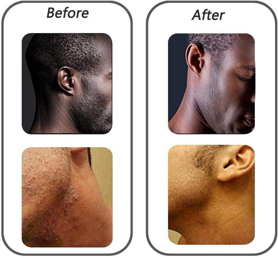 LJXiioo Cepillo Exfoliante 3pcs para Tratar y prevenir los Golpes de Afeitar y los pelos encarnados - Solución para la Piel,Green: Amazon.es: Deportes y aire libre