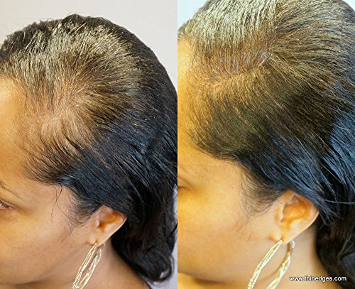 Vitalize Hair 3 Part Hair Regrowth System With Award