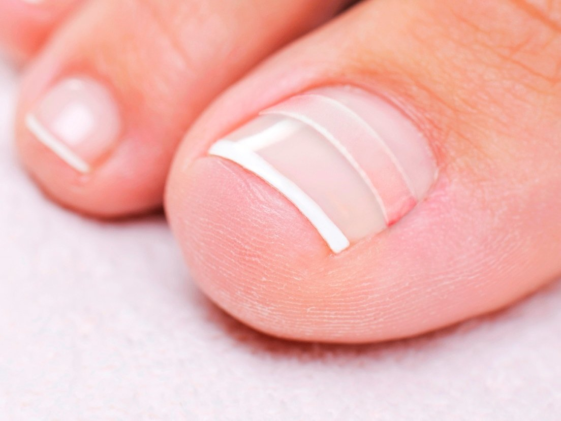 CurveCorrect Ingrown Toenail Home Treatment by CurveCorrect (Image #3)