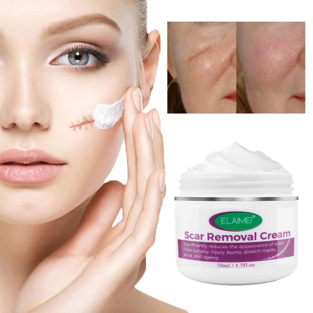 Scar Removal Cream For New and Old Scars,Stretch Mark Removal Gel Ointment, Multiuse Acne Scar Remover Fade Flatten Balm For face,C-Section,Burns, after surgery, Scar tissue soften for Men & Women