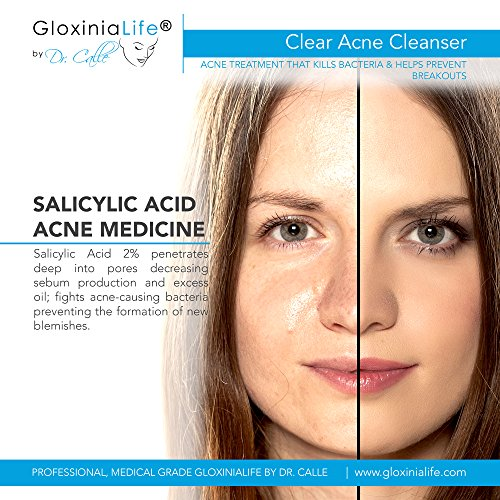 GloxiniaLife by Dr. Calle Clear Acne Cleanser- Face Cleanser for Acne and Oily Skin with Salicylic Acid- For Men and Women- Facial Exfoliating, Unclogs Pores, Fights Blackheads, 7.1 oz