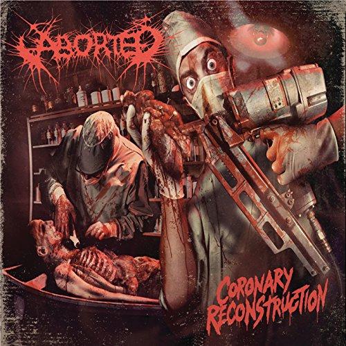 Coronary Reconstruction - EP