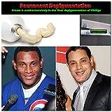 (US) Obtain Depigmentation of Vitiligo Permanently Cream 20% Perfect Skin Li SJH18052