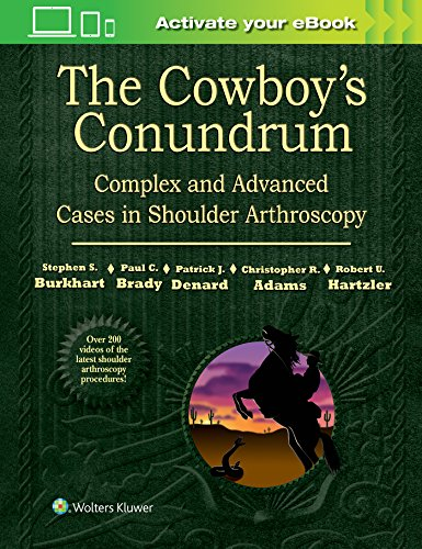 The Cowboy's Conundrum: Complex and Advanced Cases in Shoulder Arthroscopy - http://medicalbooks.filipinodoctors.org