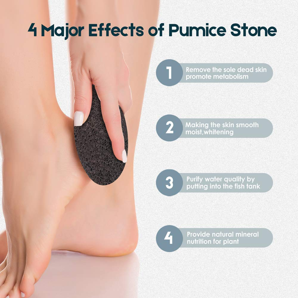 Vridale Pumice Stones for Feet Lava Pumice Stone Foot File Callus Removal Foot Scrubber for Hands Care Foot Exfoliation Dead Skin Remover with Handle: Beauty
