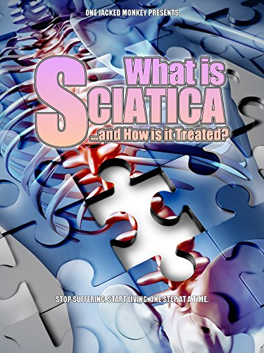 What is Sciatica: and How Is It Treated?