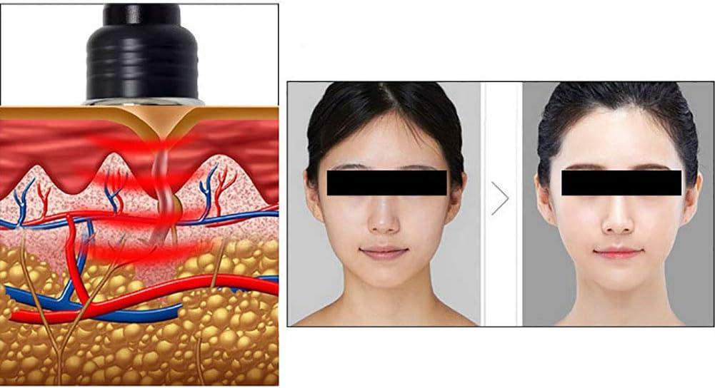 Haut vor und nach Gewichtsverlust aufhellen