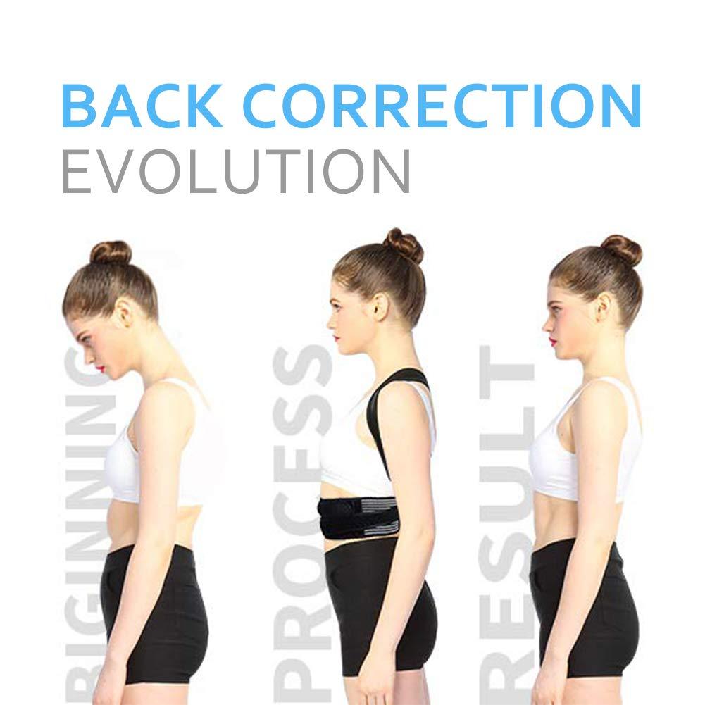 Doact Corrector de Postura, Corrector de Postura Espalda con Hombreras Blandas y Cinturones Elásticos Ajustables para Hombre y Mujer Cifosis, Jorobado ...
