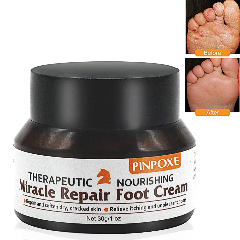 Fußcreme, Fußpilz Creme, fusspflege creme, fußbalsam, Pferdesalbe für Füße-Trockene Spröde Haut Fußcreme, kuriert und verhindert Pilzinfektionen, Fußschweiß und Fußgeruch, 30g Fußcreme Fußpilz Creme fußbalsam PINPOXE