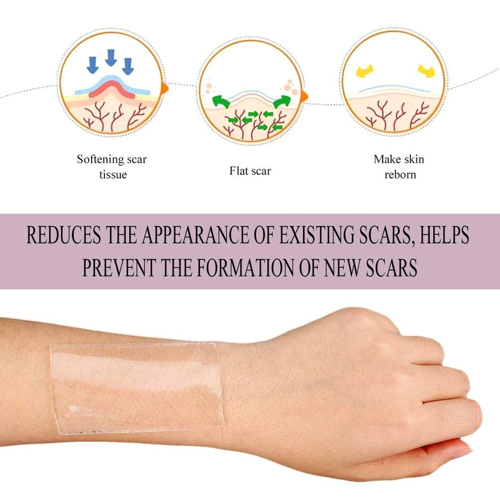 GreatWall Silicone Scar Gel Paste Medical Burn Scar Sheet Skin Repair Scar Therapy Patch Blue