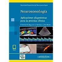 Neurosonología (incluye eBook): Aplicaciones diagnósticas para la práctica clínica