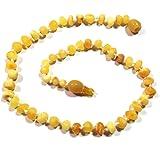 "Hazelaid (TM) 12"" Pop-Clasp Baltic Amber Super Butter Necklace"