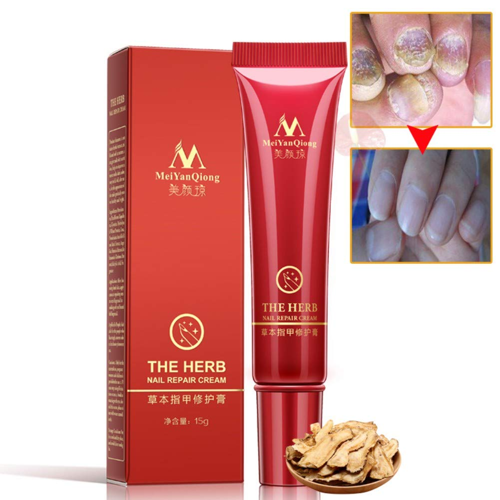 Nail Repair Cream Herbal Nail Fungus Treatment Onychomycosis Paronychia Anti Fungal Repair Toe Nail Foot Care TeenTop