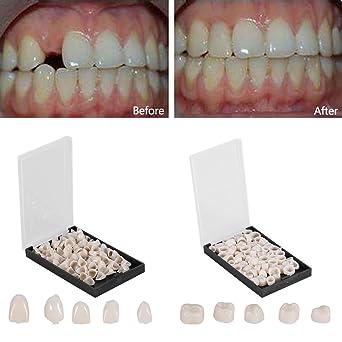 Dental temporary crown veneers material anterior front back molar dental temporary crown veneers material anterior front back molar teeth2 boxset solutioingenieria Choice Image