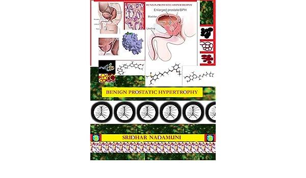 Benign prostatic hypertrophy bph kindle edition by sridhar benign prostatic hypertrophy bph kindle edition by sridhar nadamuni health fitness dieting kindle ebooks amazon fandeluxe Image collections