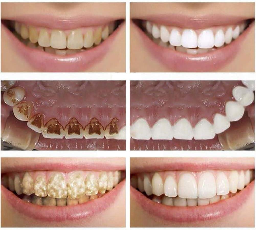 die Bequeme Passform und der Neue Druckknopf am Gummizug passen zu den bequemsten Zahnspangen und Unterseite der Furnierz/ähne ZYXBJ perfekte L/ächeln auf der Ober