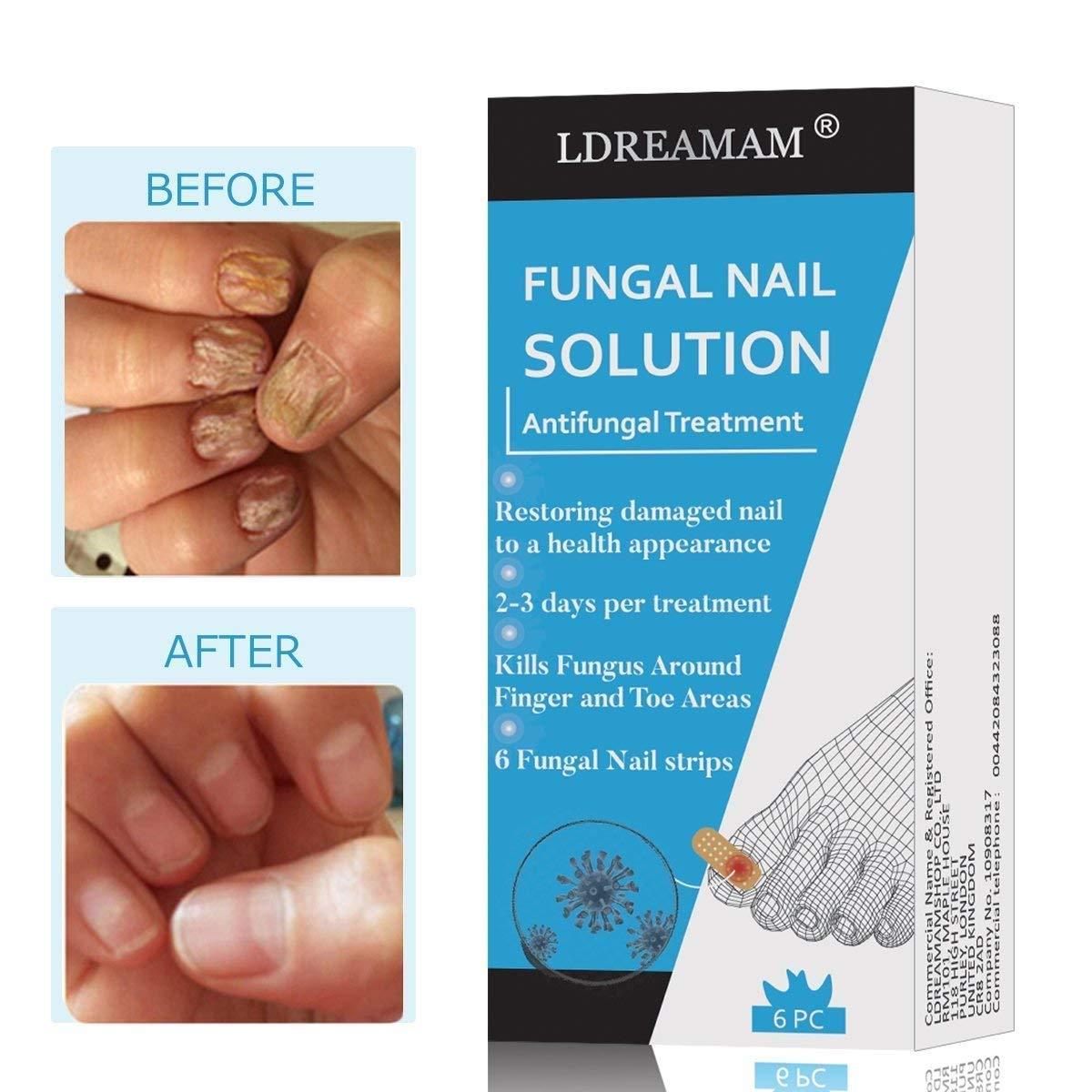 Nail Fungus,Antifungal Nail Treatment,Toenail Fungus Treatment,Antifungal Nail Gel,Removal of Fingernail and Toenail Fungus by LDREAMAM (Image #2)