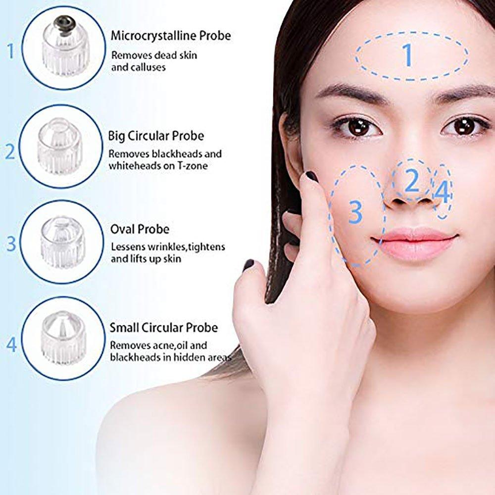 Limpiador de Poros, Eliminador de Punto Negro, Succión comedone eliminador de acné USB recargable Facial Skin Cleanser Tool con 4 microcristalino cabeza ...