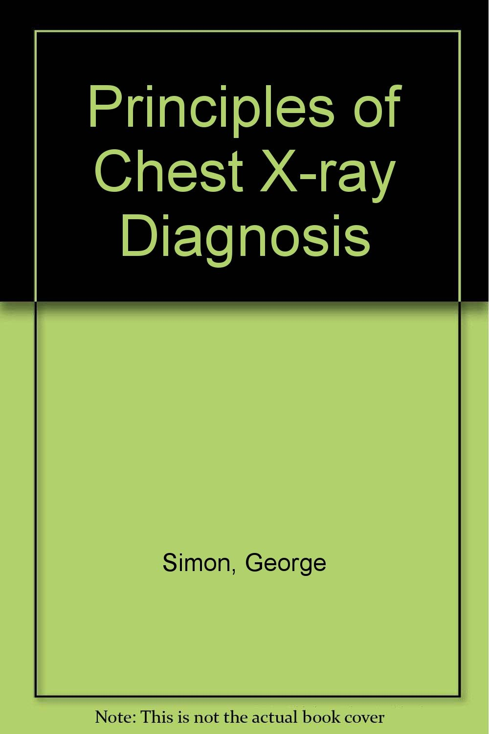 Principles of Chest X-ray Diagnosis: Amazon co uk: George