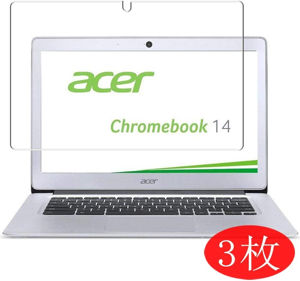 """【3 Pack】 Synvy Screen Protector for Acer Chromebook 14 CB3-431 14"""" TPU Flexible HD Film Protective Protectors [Not Tempered Glass]"""