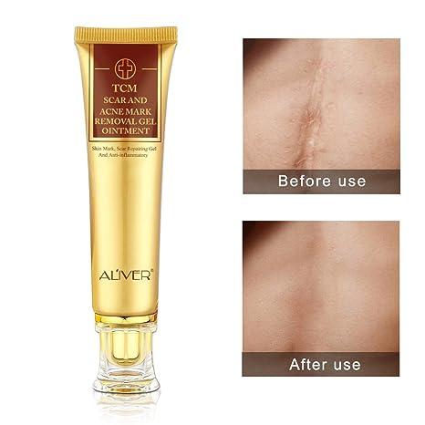 TCM cicatrices et acné Mark retrait Gel crème Pommade, Anti-inflammatoire  et Rapairing, 86048c9611f