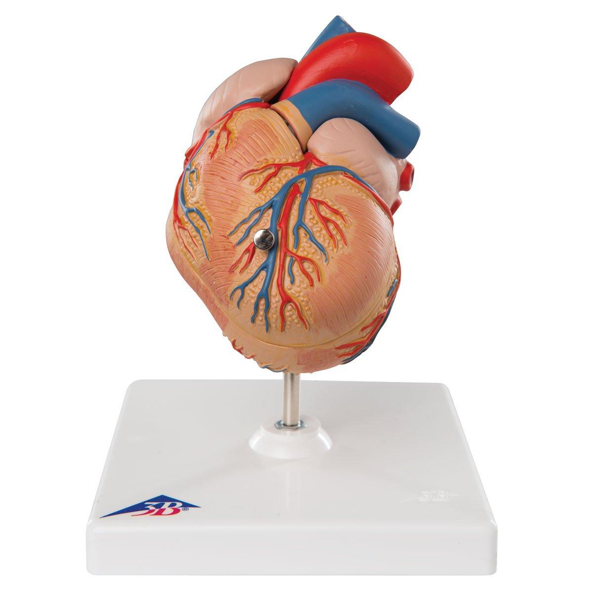 心臓,左心室肥大2分解モデル   B007NCV4V2