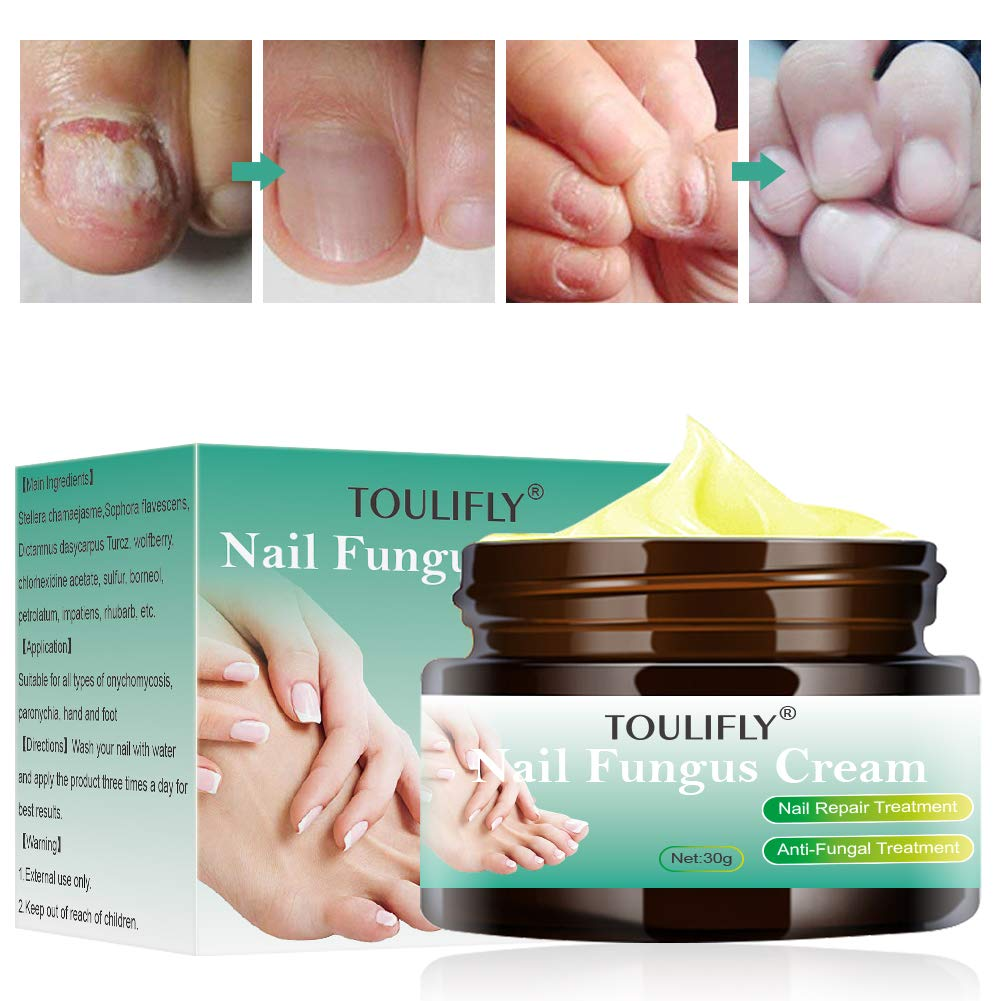 Toenail Fungus Treatment,Nail Fungus Treatment,Nial Fungus Cream,Nail Fungus Remover,Toenail Fingernail Fungus Treatment Fungus Stop Nail Care Repair Cream by TOULIFLY