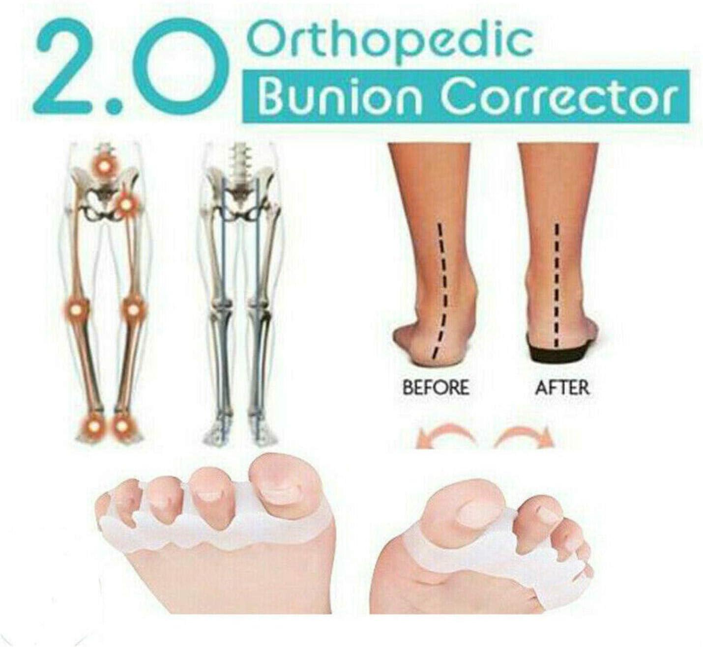 Corrector ortopédico para juanetes 2.0 y protectores para el alivio de juanetes, separadores elásticos de gel suave. (1)