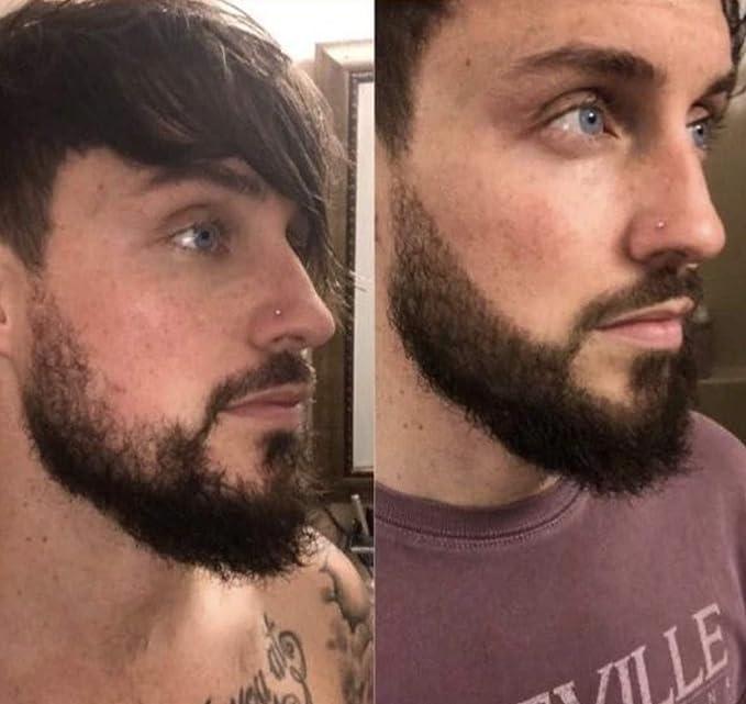 Pluma de relleno de barba de lujo, parches de pelo facial, cuidado natural para hombres, afilar, rellenar y definir quemaduras laterales