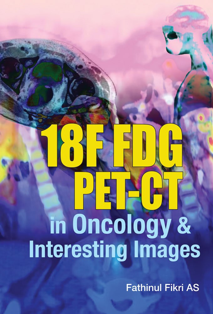 18F FDG PET-CT In Oncology & Interesting Images PDF
