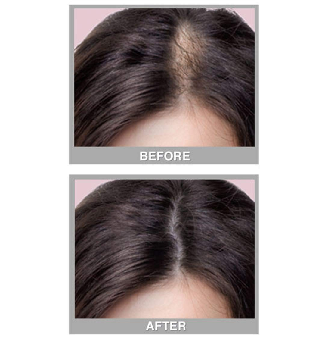 Cover Your Gray Fill in Powder - Medium Brown- Root Cover Up and Hair Volumizing Powder, Hair Filler For Thinning Hair, Root Touch Up Powder, Instantly Fills In Thinning Areas : Hair And Scalp Treatments : Beauty
