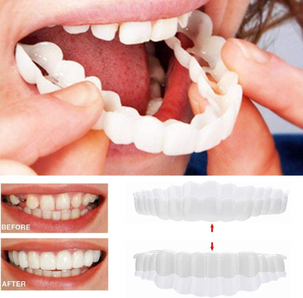 Snap On Smile - Instant Perfect Smile Clip On Veneers (Work for Top Or Bottom) - Perfect Braces and Whitening Alternative No Pain No Shots No Drilling - Perfect Smile in Minutes: Health & Personal Care
