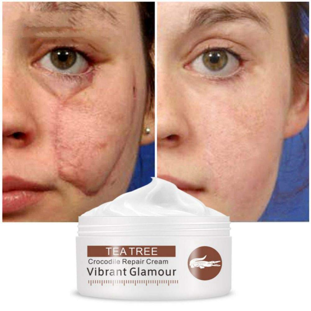 Amazon Com Acne Scar Removal Cream Moisturizing Acne Marks
