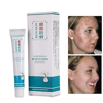 Crema para eliminar cicatrices de acné, crema suave para ...