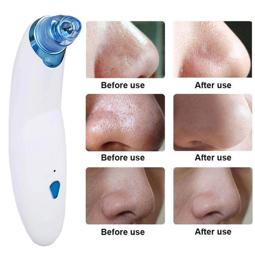 Blackhead Remover, Electronic Blackhead Vacuum Suction Removal, Skin Facial Pore Cleaner, Comedo Microdermabrasion Exfoliating Machine for Women & Men (Blue)