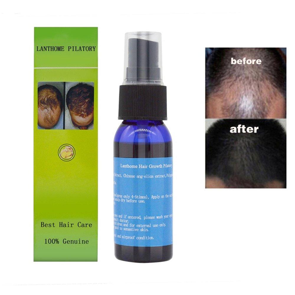 Amazon Com Hair Care Fast Powerful Hair Growth Products Hair