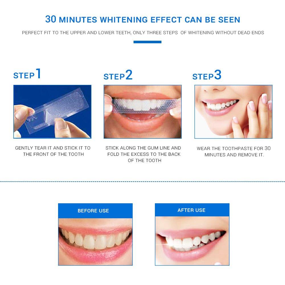 Amazon Com Teeth Whitening Strips Herwiss 3d White Whitestrips