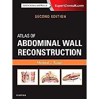 Atlas of Abdominal Wall Reconstruction, 2e