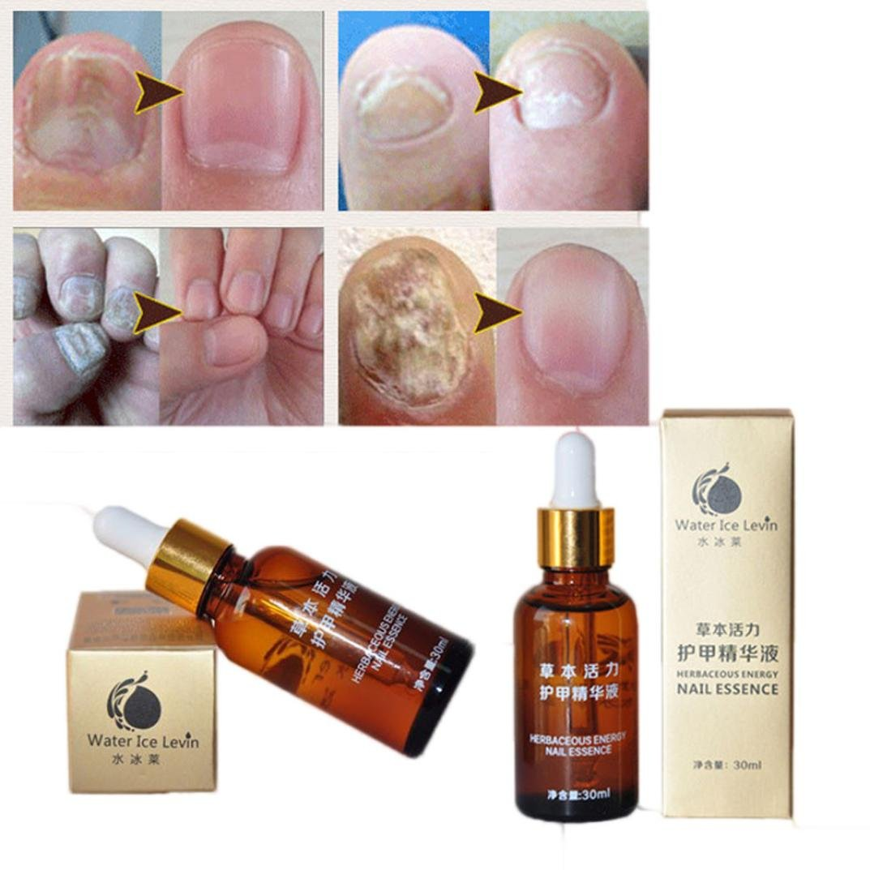 Hunpta Nail Treatment Essence Nail and Foot Whitening Toe Nail Fungus Removal (Gold)