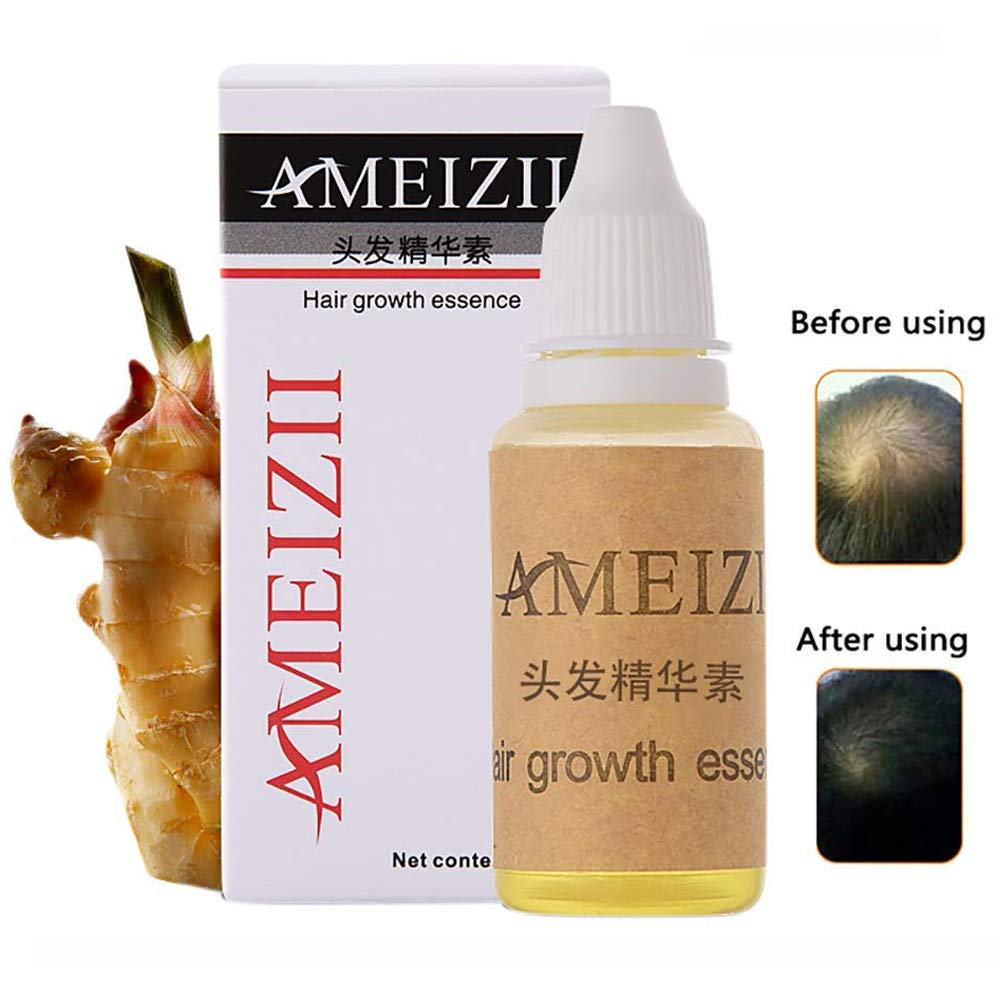 Ginger Germinal Oil,2019 Hair Growth Ginger Essential Oil Hair Growth Hair Loss Treatment Hair Growth Serum for Men and Women by QUNGCO