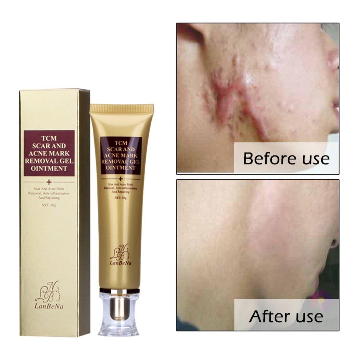 TCM Scar Removal Cream, Acne Treatment Acn Control Acne Scar Removal Gel Skin Repair for Face ear Leg Body Scarring Acne Spots Stretch Burn Scar Remover Marks 30ml