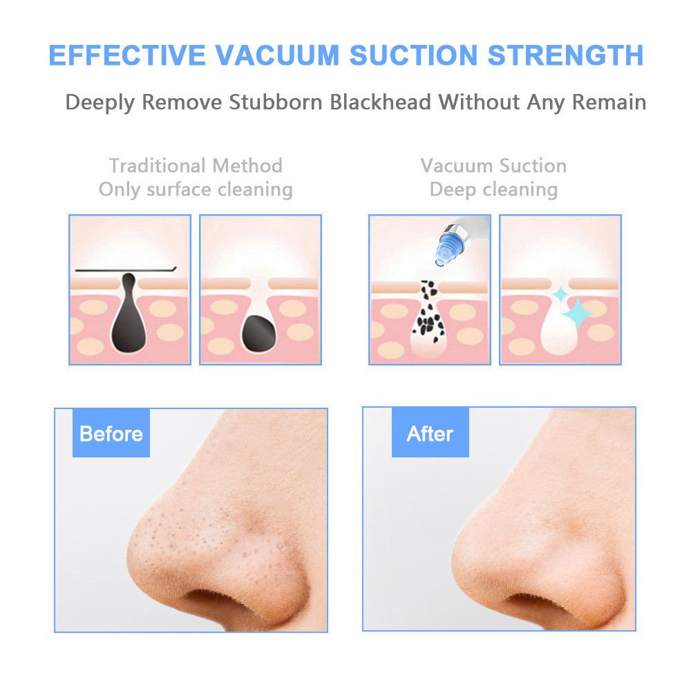 Electric Blackhead Remover -Wivarra Vacuum Blackhead Suction USB Rechargeable Extractor Tool with 4 Multi-Functional Probe,Microdermabrasion Comedone Machine for Acne and Facial Pore Clean
