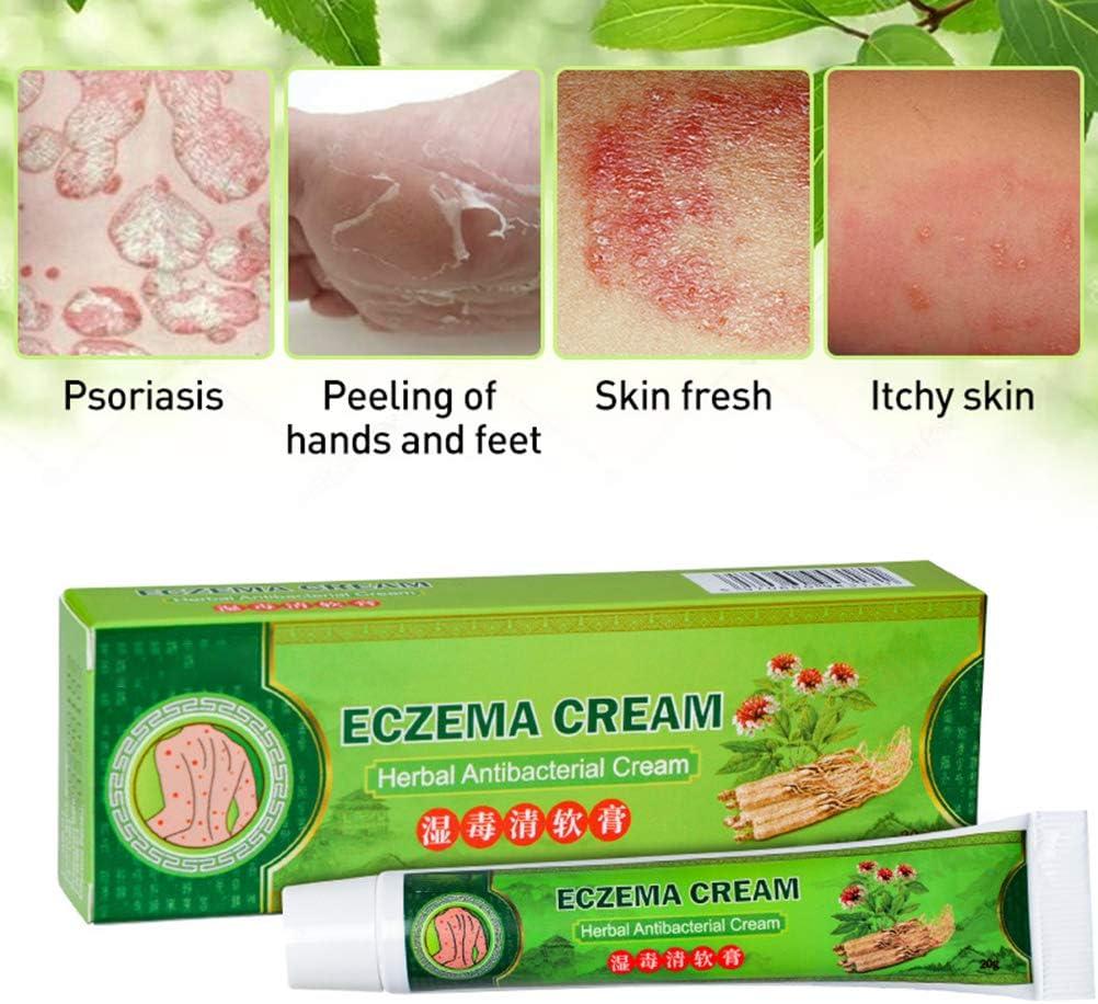 25g natürliche Kräutersalbe Psoriasi Creme wirksam Psoriasis Dermatitis bei V4R0