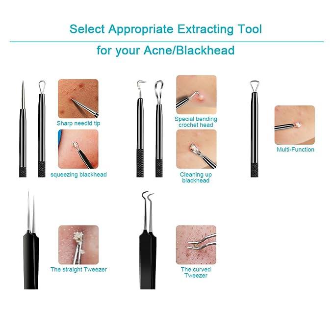 sedremm Blackhead Remover herramienta 5 en 1 acné Extractor granulada con espejo 10 pcs Alcohol algodón almohadillas: Amazon.es: Belleza