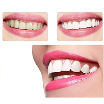 Amazon Com Newkelly Yellow Teeth Smoke Teeth Dental Stone Tooth