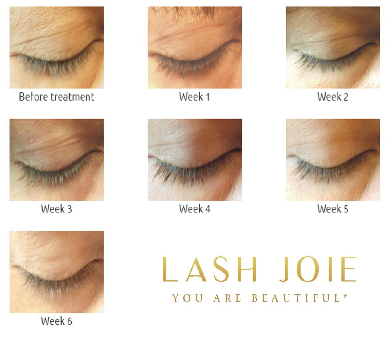 Amazon Top Rated For Eyelash Growth Lash Serum And Lash